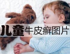 儿童早期牛皮癣症状有哪些