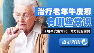 老年治疗牛皮癣注意哪些